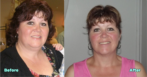 Veronica Before and After Virtual Gastric Band