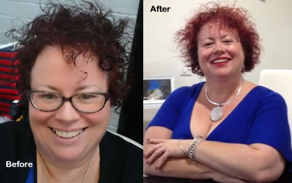 Pattsy Before and After Virtual Gastric Band